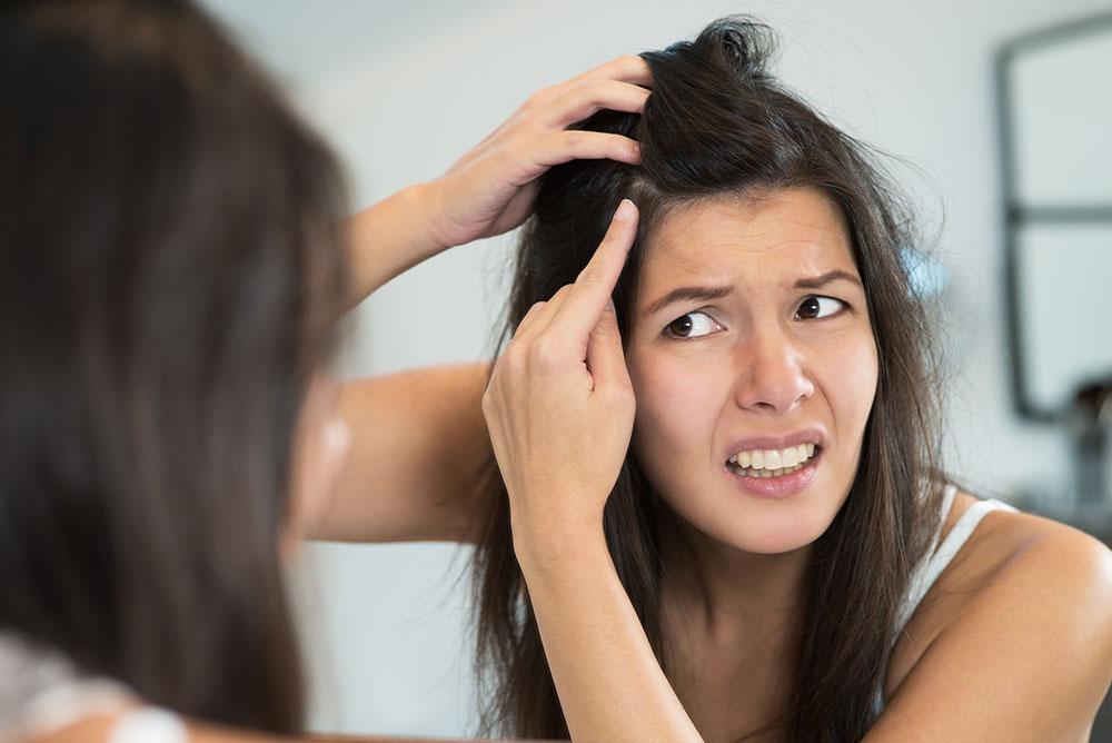 Losing My Hair - it happened to me