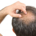 scalp-irritation-hair-loss