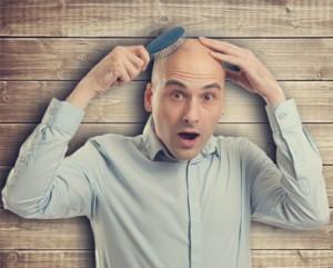 male-hair-loss