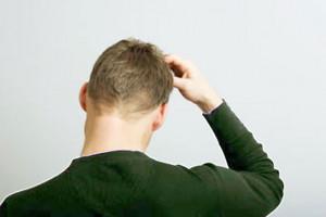 Scalp Psoriasis Treatment